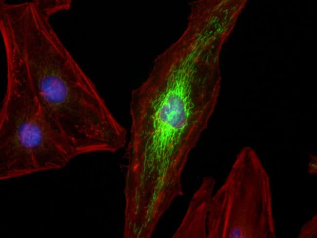 HeLa cells were transduced with CellLight® Mitochondria-GFP (mitochondria, green, C10600) and grown over night. Following fixation, permeabilization and block using the Image-iT Fixation/Permeabil