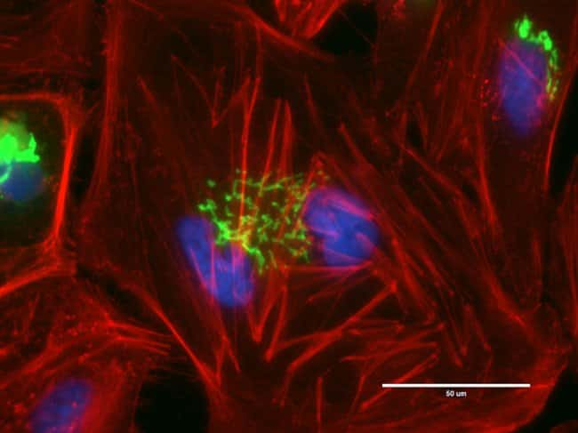 HeLa cells were transduced with CellLight® Nucleus-GFP (nucleus, green, C10602), grown over night. Following fixation, permeabilization and block using the Image-iT Fixation/Permeabilization Kit (