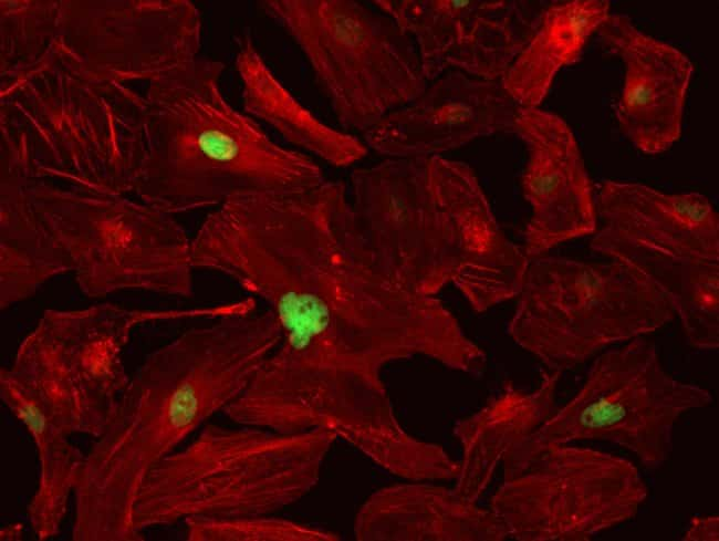 HeLa cells were transduced with CellLight® Histones-GFP (H2B, nucleus, green, C10600) and grown over night. Following fixation, permeabilization and block using the Image-iT Fixation/Permeabilizat