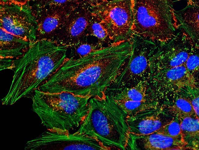 HeLa cells were plated on coverslips overnight. The next day the cells were fixed and permeabilized using the Image-iT® Fixation/Permeabilization Kit (R37602) according to protocol. Cells were the