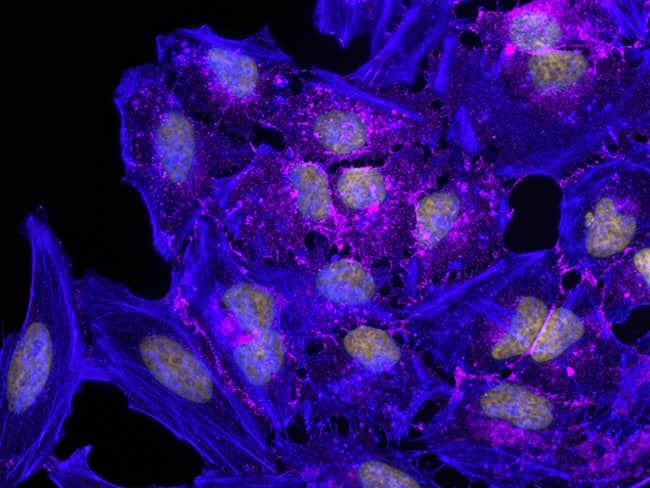 Qdot®-based staining of B-catenin in HeLa cells imaged using the EVOS® FL Auto imaging system