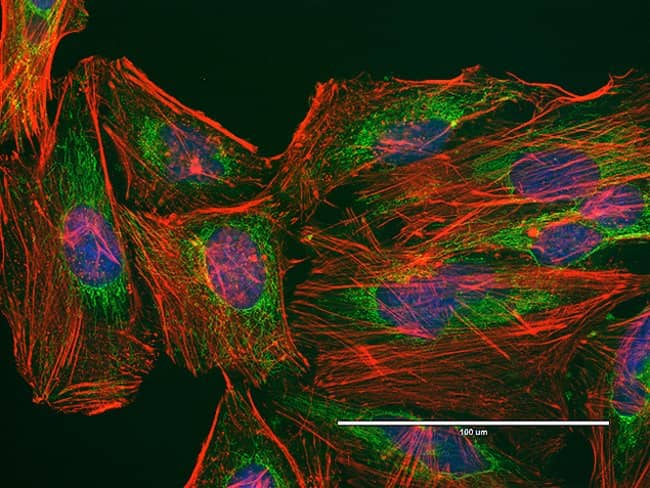 HeLa cells were plated on coverslips overnight.  The next day cells were fixed and permeabilized using the Image-iT® Fixation/Permeabilization Kit (R37602) according to protocol.  Cells were then