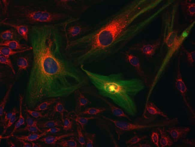 HeLa cells were transduced with CellLight® Tubulin-GFP(C10508), grown over night, and fixed, permeabilized and blocked using the Image-iT Fixation/Permeabilization Kit (R37602). Mitochondria were