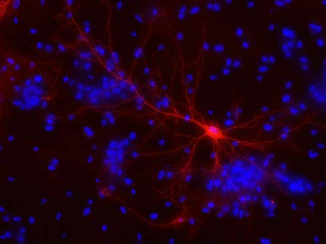 Mature rat hippocampal neuron expressing mKate fusion to CHIEF channelrhodopsin membrane protein were counterstained with NucBlue® Live cell stain (R37605) and imaged after ten days in culture on