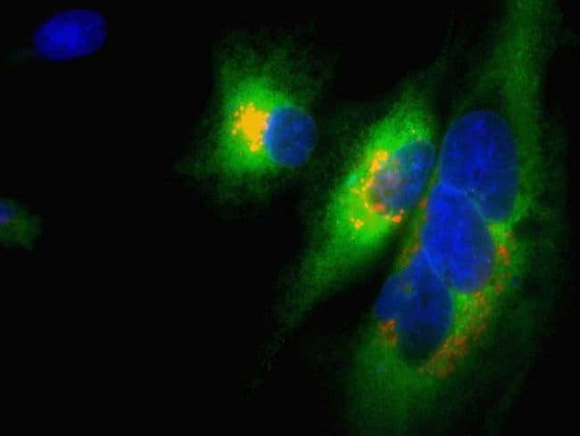 CellLight®-transduced HeLa cells in Nunc™ glass-bottom microwell plates imaged on EVOS® FL Auto at 60X