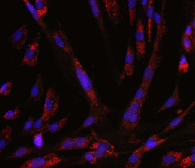 Autophagy detected in Human skeletal muscle cells