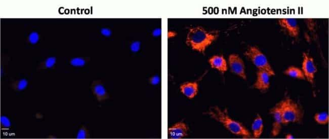 Angiotensin –II induced oxidative stress in human smooth muscle cells (HASM) measured with CellROX™ Orange Reagent. HASM cells were plated on glass bottom 35 mm MatTek dishes. The cells were treated w