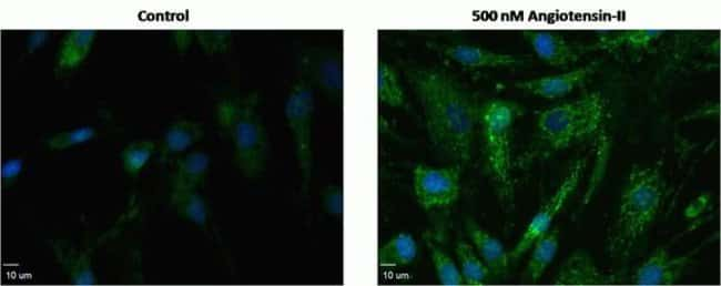 Angiotensin II Induced Oxidative Stress Measured with CellROX™ Green Reagent in Human Aortic Smooth Muscle Cells