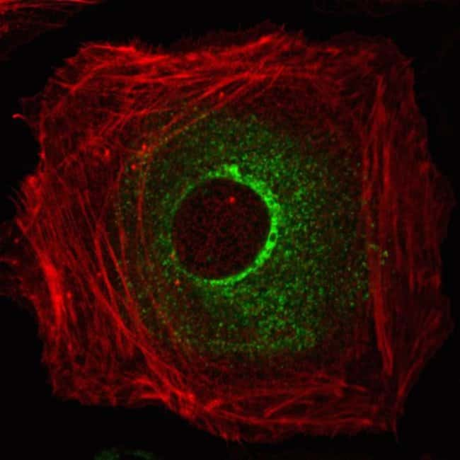 Human epidermal keratinocytes, neonatal, (HEKn) were co-transduced with CellLight® Actin-RFP and CellLight® Late Endosomes-GFP and imaged on a Zeizz LSM confocal microscope after over night incubation.