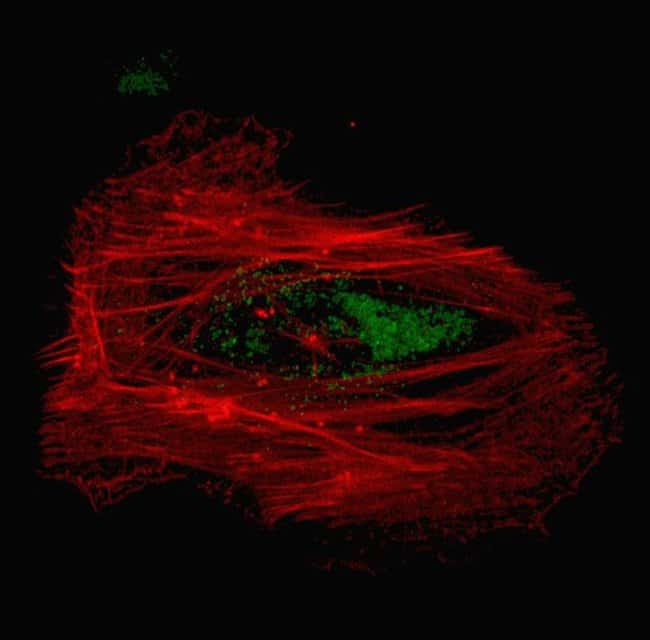 Human epidermal keratinocytes, neonatal, (HEKn) were co-transduced with CellLight® Actin-RFP and CellLight® Late Endosomes-GFP and imaged on a Zeiss LSM confocal microscope after over night incubation.