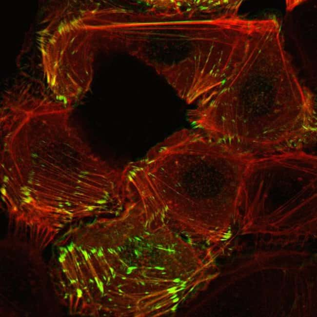 Human epidermal keratinocytes, neonatal, (HEKn) were co-transduced with CellLight® Actin-RFP and CellLight® Talin-GFP and imaged on a Zeiss LSM confocal microscope after over night incubation.