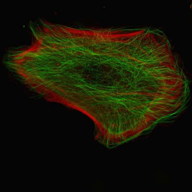 Human epidermal keratinocytes, neonatal, (HEKn) were co-transduced with CellLight® Actin-RFP and CellLight® Tubulin-GFP and imaged on a Zeiss LSM confocal microscope after over night incubation.
