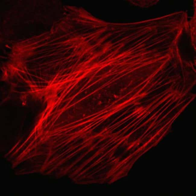 Human epidermal keratinocytes, neonatal, (HEKn) were transduced with CellLight® Actin-RFP and imaged on a Zeiss LSM confocal microscope after over night incubation.