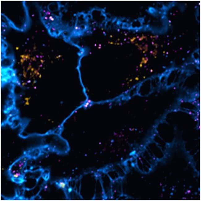 HeLa cells were co-transduced with CellLight® Late Endosmes-RFP and CellLight® Early Endosmes-GFP and incubated overnight. Following staining with HCS CellMask™ Deep Red, cells were imaged on a Zeiss 710 confocal microscope.