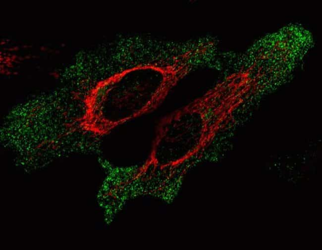 HeLa cells were co-transduced with CellLight® Synaptophysin-GFP and CellLight® Mitochondria-RFP and imaged on a Zeiss LSM confocal microscope after over night incubation.