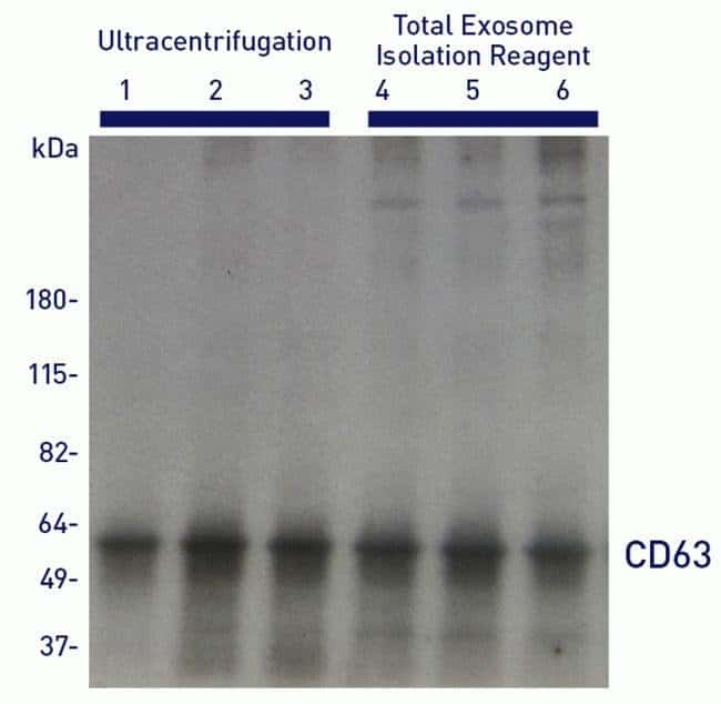 Western blot analysis for the presence of exosomal marker protein CD63 in samples recovered with Total Exosome Isolation reagent.