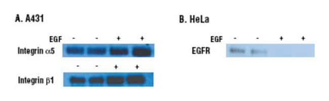 A431 and HeLa cells were treated with or without 20ng/mL and 10ng/mL EGF for 16 hours, respectively. Both cell types were processed with the Thermo Scientific Pierce Cell Surface Protein Isolation Kit