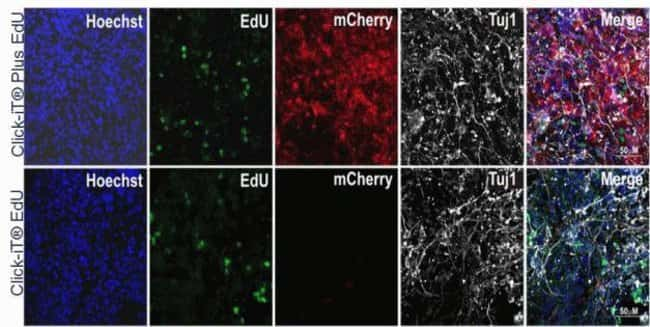 Genetically modified induced multipotent otic progenitor cells expressing mCherry were initially cultured in DMEM/F12, B27 containing 20 ng/ml of bFGF. To promote neuronal differentiation, cells were