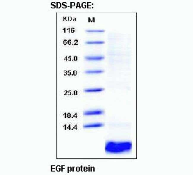 SDS-PAGE analysis of Epidermal Growth Factor (EGF)
