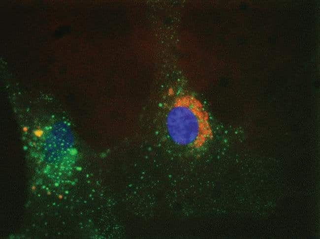 Live cell imaging with CellLight™ reagents.