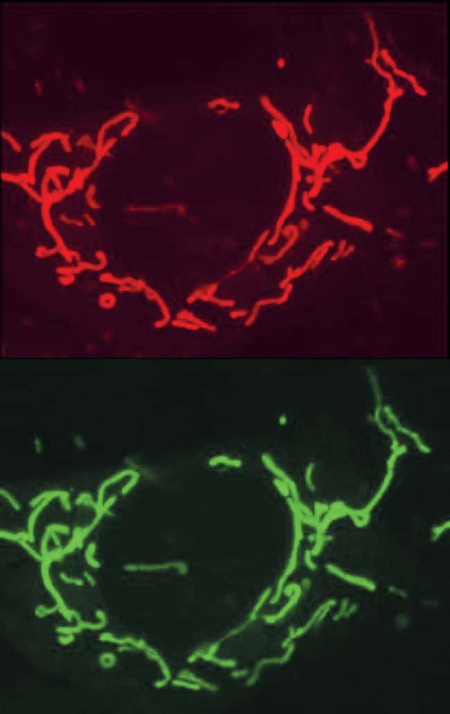 Colocalization of fluorescent staining by rhod-2 AM and mitochondrion-selective MitoFluor™ Green stain in an adult rat cortical astrocyte.