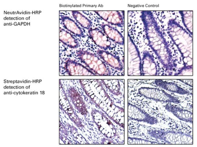 Excellent IHC staining of GAPDH and cytokeratin 18 in human colon carcinoma with High Sensitivity HRP Conjugates