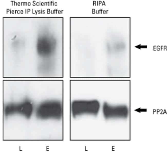 A549 cell lysates (200µg) were generated using different lysis buffers. EGFR and PP2A were immunoprecipitated using the Thermo Scientific Pierce Crosslink IP Kit (Part No. 26147) and anti-EGFR an