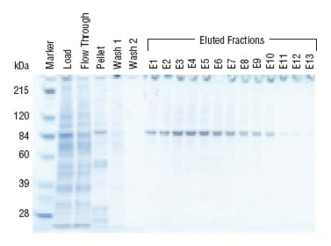 Affinity purification of 6xHis Cyclin B1 from insect cell extract