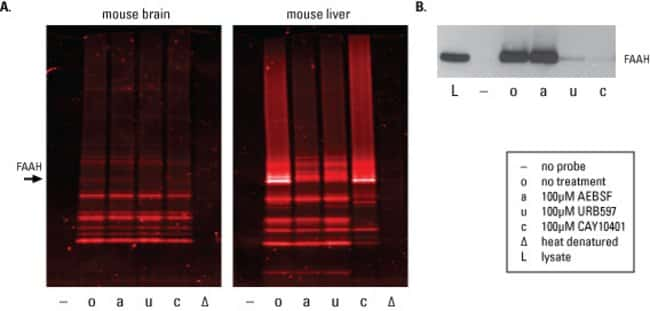 A. Mouse brain or liver tissue lysates (50µg) were pretreated with either DMSO (o) or serine hydrolase inhibitors 100µM AEBSF (a), URB597 (u) or CAY10401 (c) for 1 hour before labeling wit