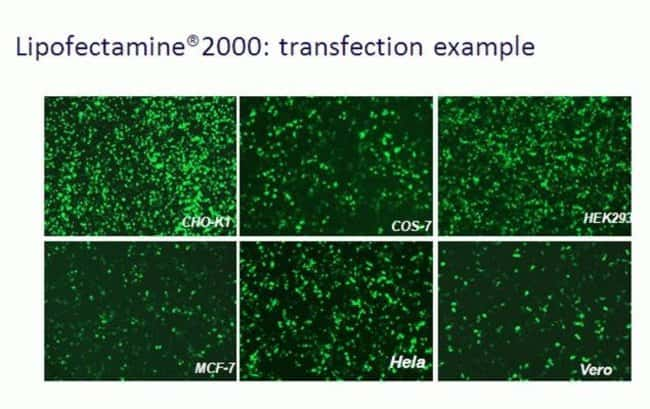 Lipofectamine® 2000 transfection example