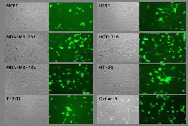 Lipofectamine® LTX in the presence of PLUS™ Reagent is an excellent choice for transfection of human cancer cell lines as well as primary and stem cells. The reagent enables the delivery of  high transfection performance without associated cytotoxicity