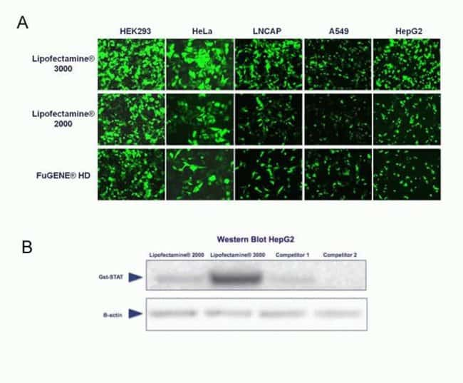 (A) Different cell lines were transfected with a GFP reporter vector using the indicated transfection reagents. (B) HepG2 cells were transfected with a vector expressing GST-tagged STAT protein. A wes