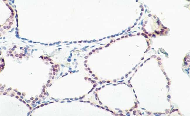 Immunohistochemical Staining of human thyroid gland tissue using Mouse Anti TTF-1 Monoclonal Antibody