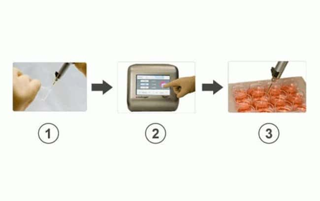 A simple 3-step transfection procedure using the Neon™ Transfection System.