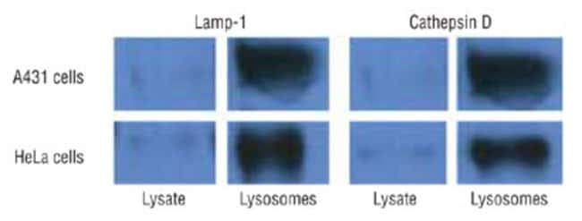Lysosome enrichment from cultured cells