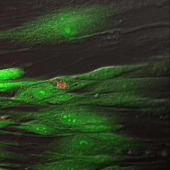 Human Dermal Fibroblast Cells Stained Using the LIVE/DEAD® Cell Imaging Kit