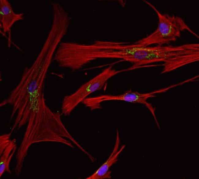 Neonatal human dermal fibroblasts fixed and permeabilized using the Image-iT® Fixation/Permeabilization Kit.