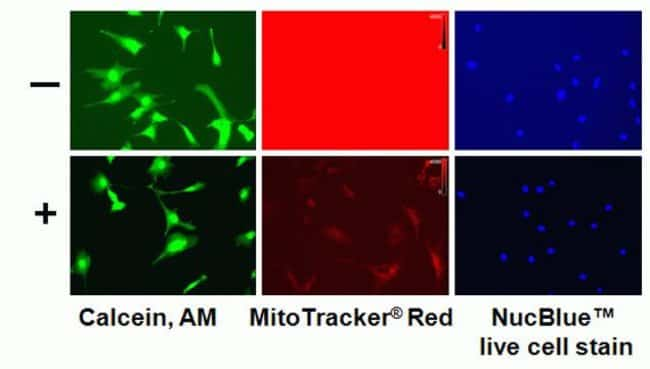 Add a few drops BackDrop™ Background Suppressor to your live cells and see background haze disappear.  The BackDrop™ reagent also minimizes the need for medium removal and potential cell loss.  BackDr