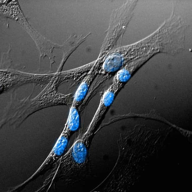 Human Dermal Fibroblasts Stained with NucBlue™ Fixed Cell Stain