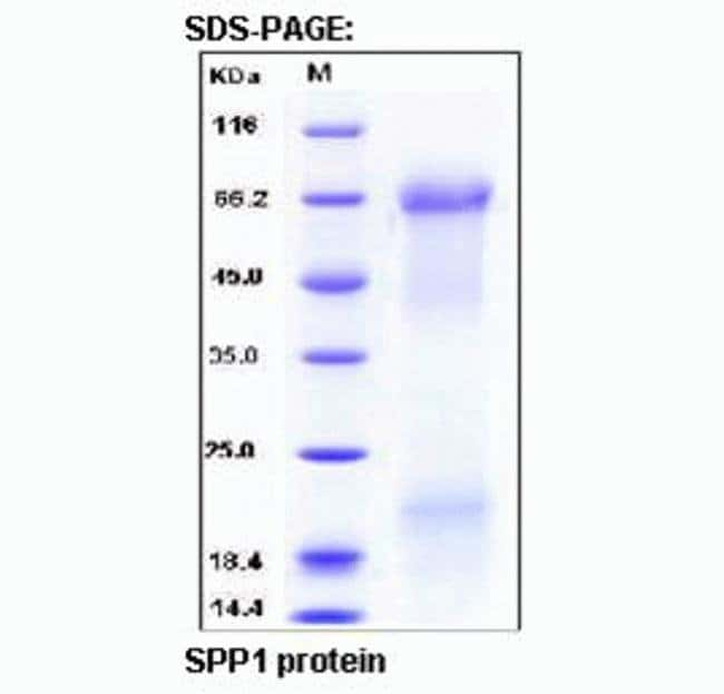 Amplification results are shown for a duplex reaction using TaqPath™ qPCR Master Mix, CG, human cDNA, and a RPLPO (large ribosomal protein) assay with an exogenous internal positive control (IPC).
