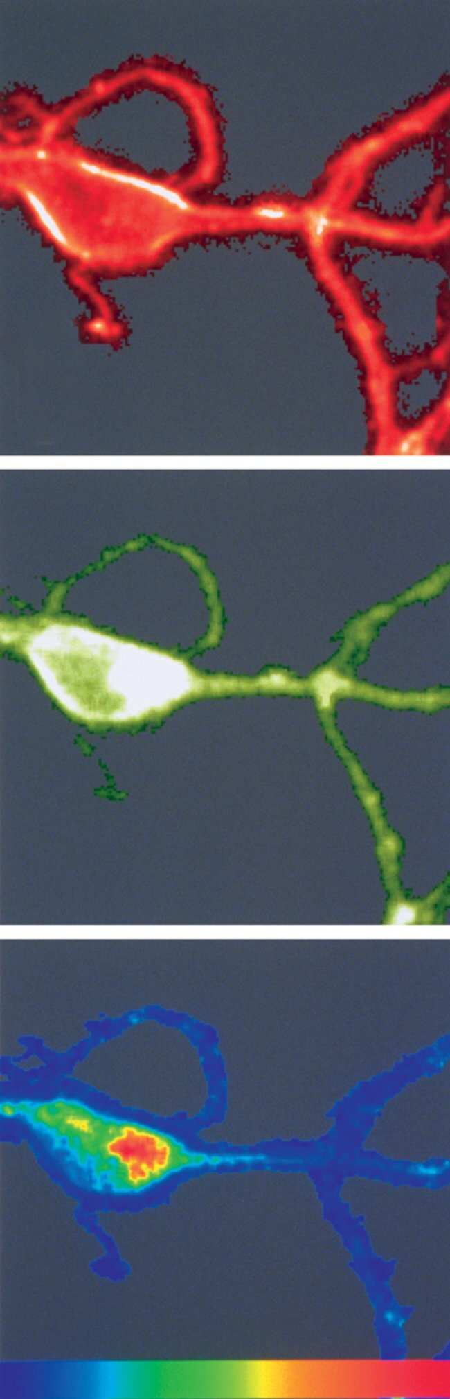 Cultured olfactory bulb neuron stained with RH 414 and DM-BODIPY®(–)-dihydropyridine.