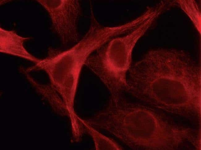 HeLa cells transduced with CellLight™ Tubulin-RFP (Cat. no. C10614). The following day, live-cell imaging was performed using a DeltaVision® Core microscope and standard TRITC filter sets.