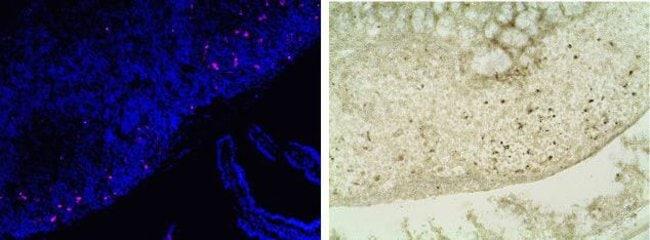 Correlation between fluorescence and colorimetric apoptotic detection methods