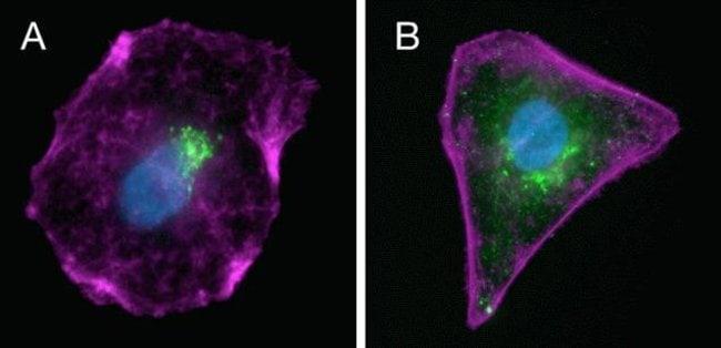 Reducing endogenous background with the Endogenous Biotin–Blocking Kit