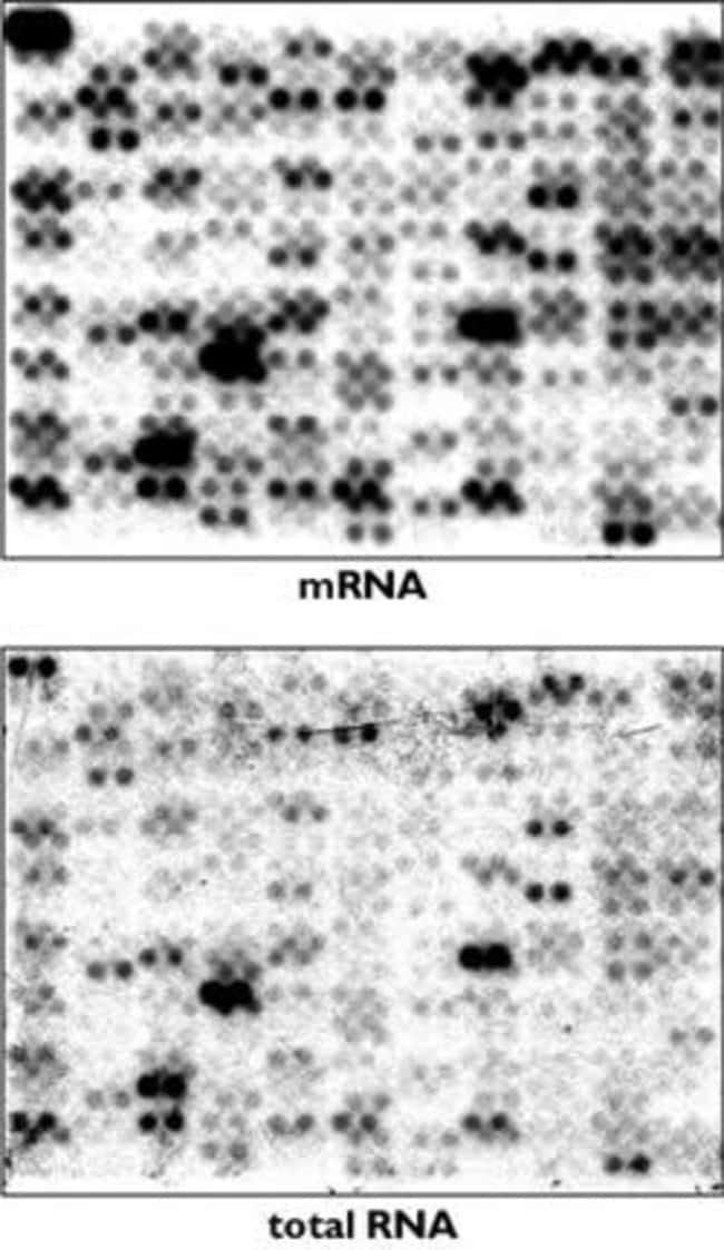 MICROBExpress™ enrichment of <i>E. coli</i> RNA improves array analysis.