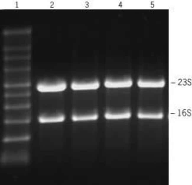 Total RNA (2 µg) was separated on a 1% agarose gel in formaldehyde/ MOPS buffer. Samples were heated at 80ºC for 10 min in denaturing agarose gel loading buffer with 100 µg/µl EtBr b
