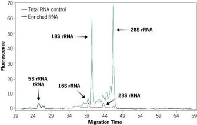 RNA Before and After Enrichment with the MICROBEnrich™ Kit