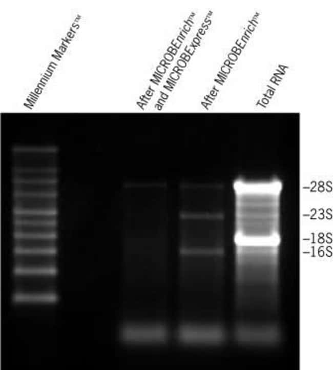 RNA Before and After Enrichment with MICROBEnrich™