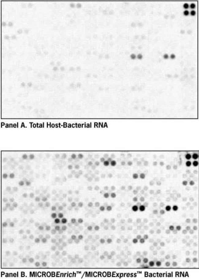 Enrichment for Bacterial mRNA Results in More Sensitive Array Analysis