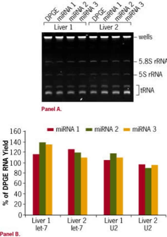 Improved RNA isolation procedure for efficient recovery of miRNA.